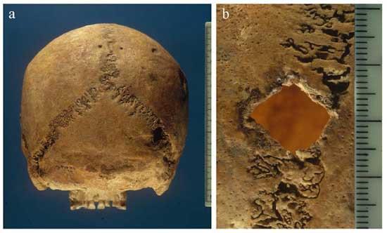 Cranial remains with diamond-shaped trauma