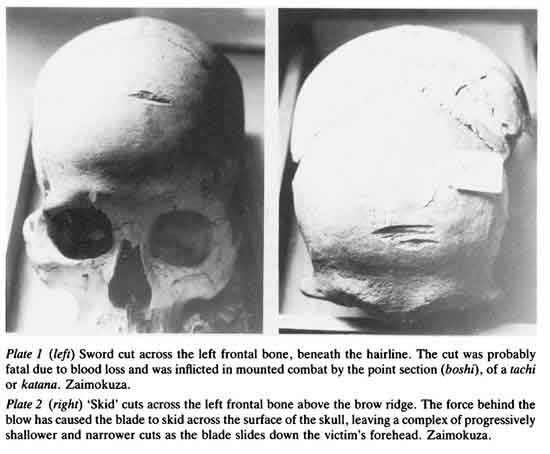 Frontal cut and skidding cut on skulls