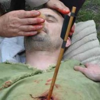 The Medieval Wounded Man: Common wound locations and treatment