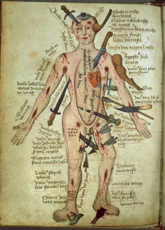 the medieval wounded man common wound locations and treatment. Black Bedroom Furniture Sets. Home Design Ideas