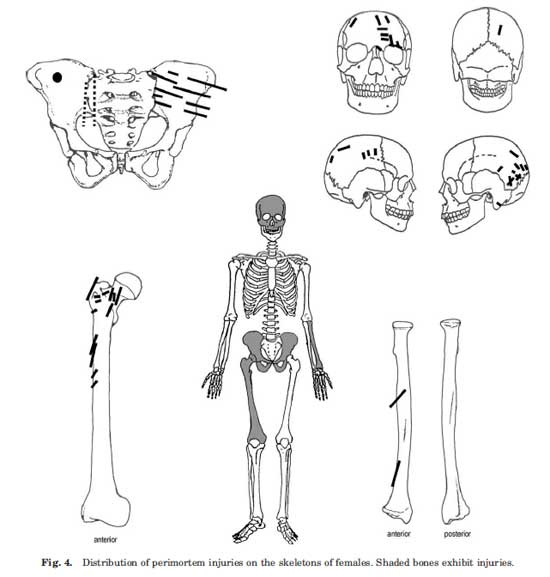 Chart of injury location and distribution for female sets of remains