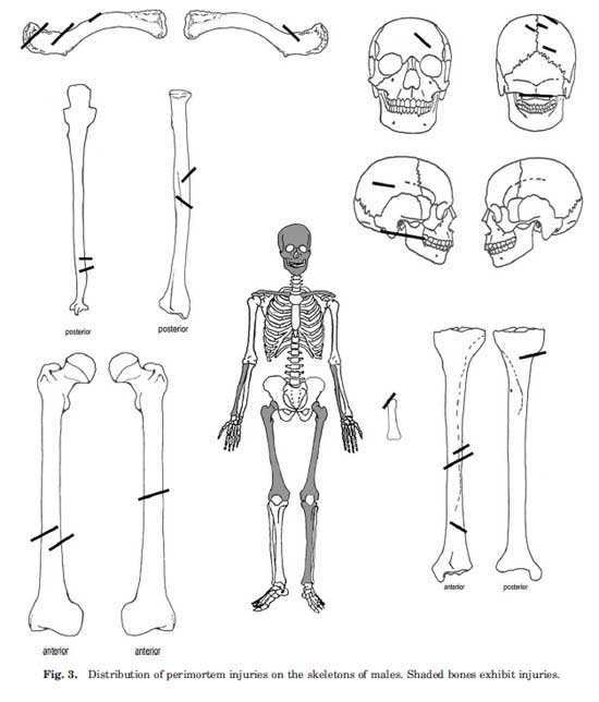 Chart of injury locations and distrubtion on the male sets of remains